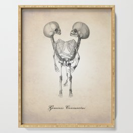 Conjoined Twins Human Anatomy Art Print Serving Tray