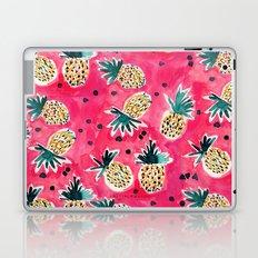 Watermelon Pineapples Laptop & iPad Skin