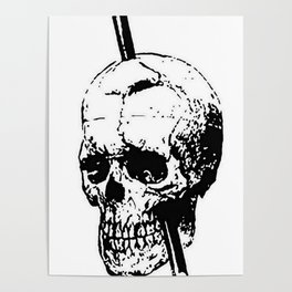 The Skull of Phineas Gage Vintage Illustration Poster