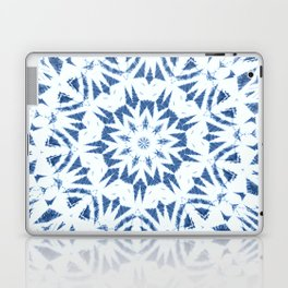 Snowflake Denim & White Laptop & iPad Skin