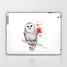 Number One Laptop & iPad Skin