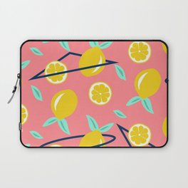 Lemons party #society6 #decor #buyart Laptop Sleeve