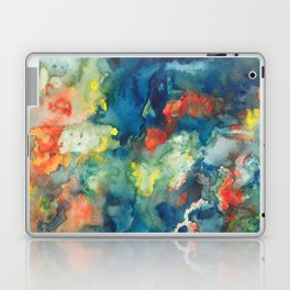 Mindscapes: Did you get hit by a bus or just have a baby? Laptop & iPad Skin