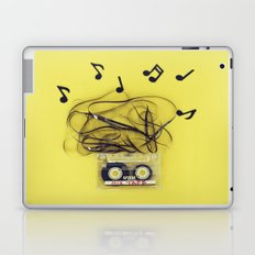 Mix Tape (ANALOG ZINE) Laptop & iPad Skin
