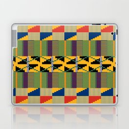 K2 Laptop & iPad Skin