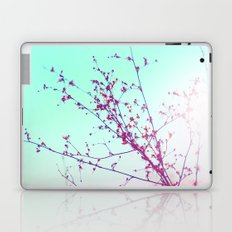 Lovely Days  Laptop & iPad Skin