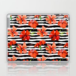 Hibiscus flower and stripes pattern Laptop & iPad Skin