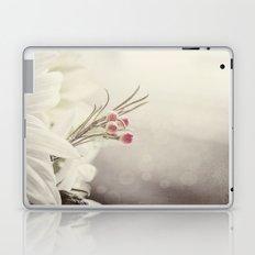 Don't be shy.... Laptop & iPad Skin