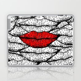 A Bunch of Kisses Laptop & iPad Skin