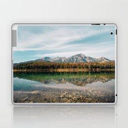 Alberta Reflections Laptop & iPad Skin