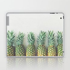 It's All About the Pineapple Laptop & iPad Skin