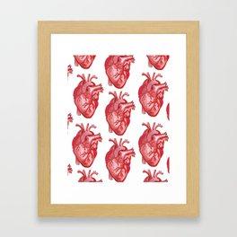 Open Heart Surgery Framed Art Print