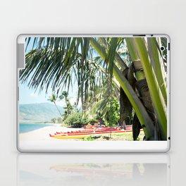 Aloha Sugar Beach Laptop & iPad Skin