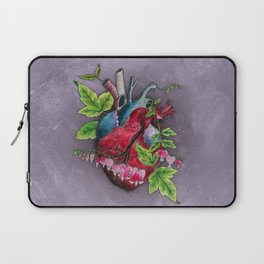 Open Hearted Laptop Sleeve