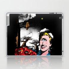 Bliss Laptop & iPad Skin