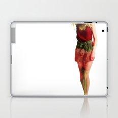 Ruby Love Laptop & iPad Skin