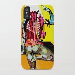 Anatomy [Casseri] iPhone Case