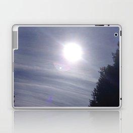 sKYfLaRe Laptop & iPad Skin
