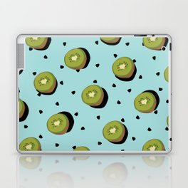 Kiwi Fruit Laptop & iPad Skin