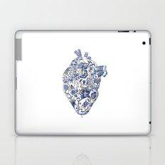 Broken heart - kintsugi Laptop & iPad Skin