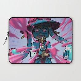 Pink vs Blue Laptop Sleeve