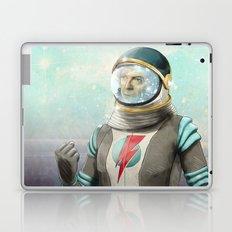 Stardust to Stardust Laptop & iPad Skin