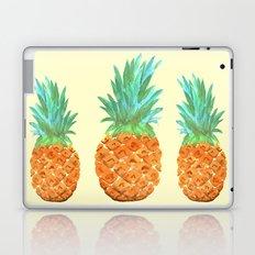 Pineapple Party Laptop & iPad Skin