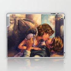 A Kiss for Corona Laptop & iPad Skin