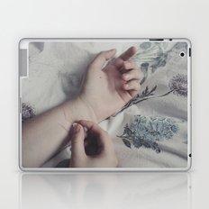Scars Laptop & iPad Skin
