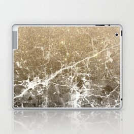 Vintage black white gold glitter marble Laptop & iPad Skin