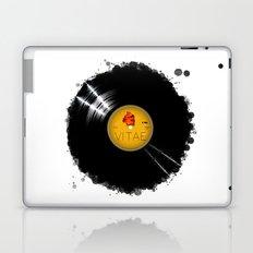 B-Side of Life LP  Laptop & iPad Skin