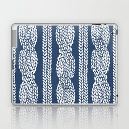 Cable Navy Laptop & iPad Skin