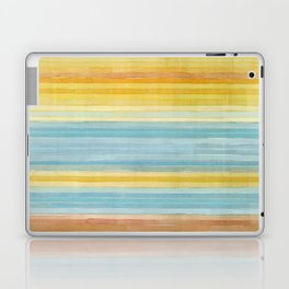 Colorbands Yellowstone Yellow Laptop & iPad Skin