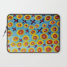 Hugs and Kisses... Laptop Sleeve