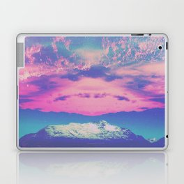 BLITZ Laptop & iPad Skin
