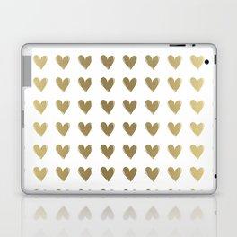 Smal Golden Hearts Laptop & iPad Skin