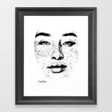 freckles. Framed Art Print