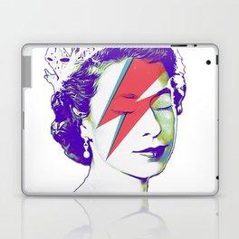 Queen Elizabeth / Aladdin Sane Laptop & iPad Skin