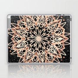 Metallic Mandala Laptop & iPad Skin