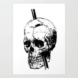 The Skull of Phineas Gage Vintage Illustration Art Print