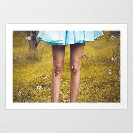 Dirty Knees Art Print