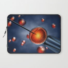 In Vitro fertilization Laptop Sleeve