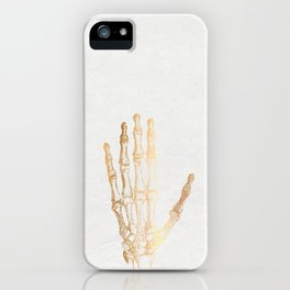 Goldfinger...s iPhone Case