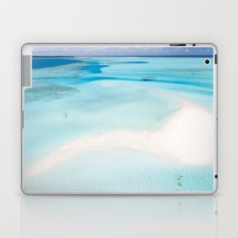 Pirate Booty Laptop & iPad Skin