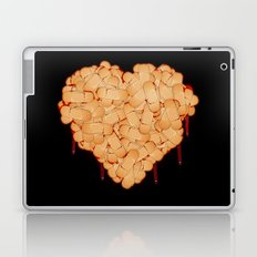 Wounded heart Laptop & iPad Skin