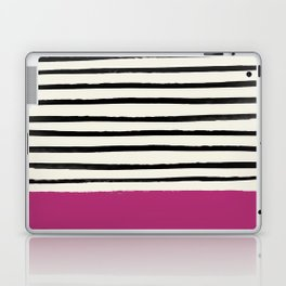 Raspberry x Stripes Laptop & iPad Skin