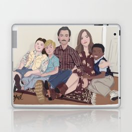 THIS IS US Laptop & iPad Skin