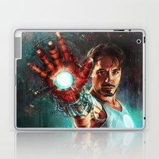 Light 'Em Up Laptop & iPad Skin