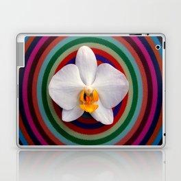 The Midas Kiss Laptop & iPad Skin