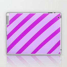 Royal Stripes Laptop & iPad Skin